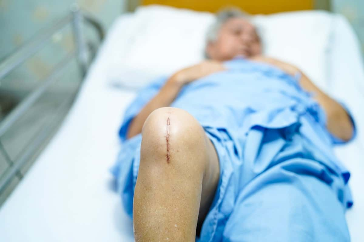 How to Sleep After Meniscus Surgery